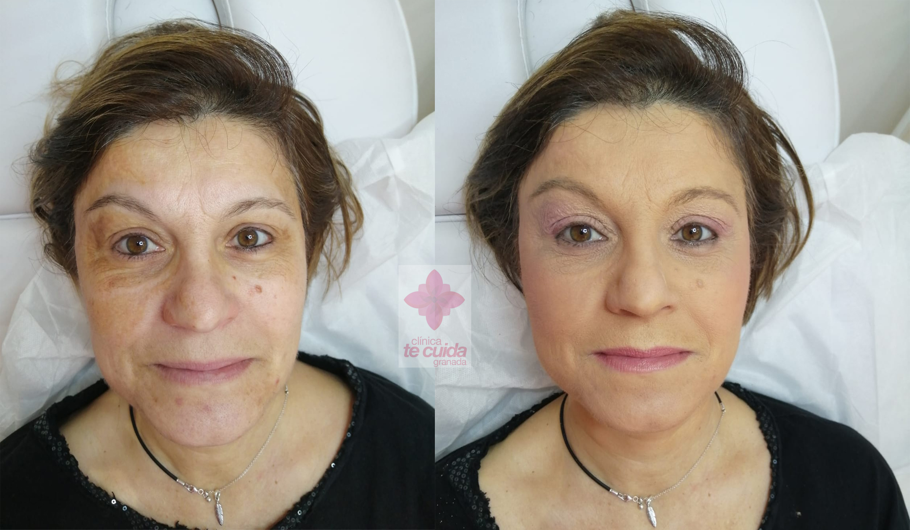 El antes y el después con maquillajes Couvrance de Avène